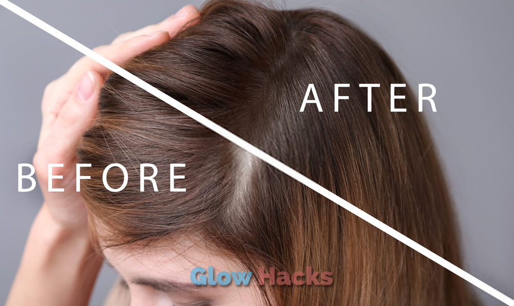 How To Use Onions For Hair Growth